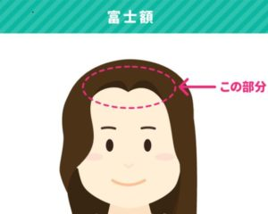 成海璃子,前髪,生え際が変