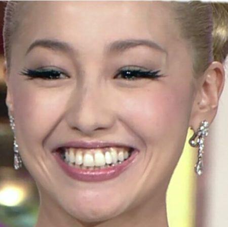 沢尻エリカ,歯,短くなった,歯科矯正,黒い