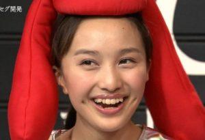 かわいい,なぜ,百田夏菜子,八重歯,歯科矯正,本当,理由